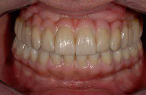 Benefits of dentures Santa Rosa