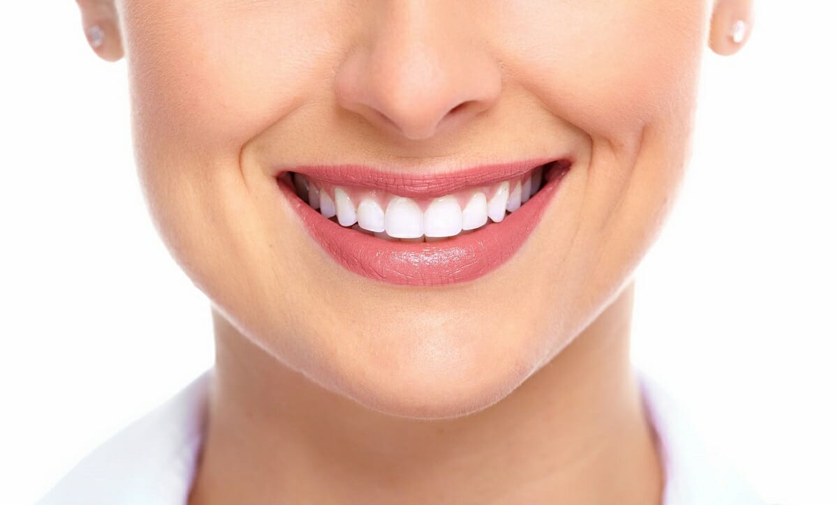 Dental bonding vs. porcelain veneers