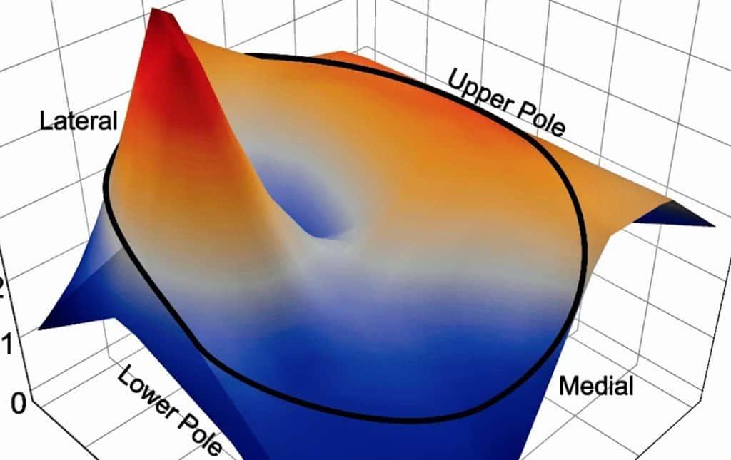 Digital heat maps of sperm based on Sperm Mapping