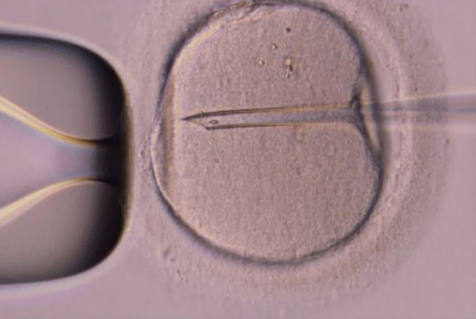 In vitro fertilization vs. intracytoplasmic sperm injection