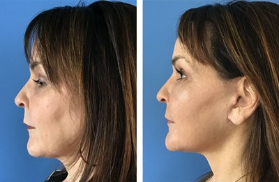 Facial Rejuvenation patient before & after photos