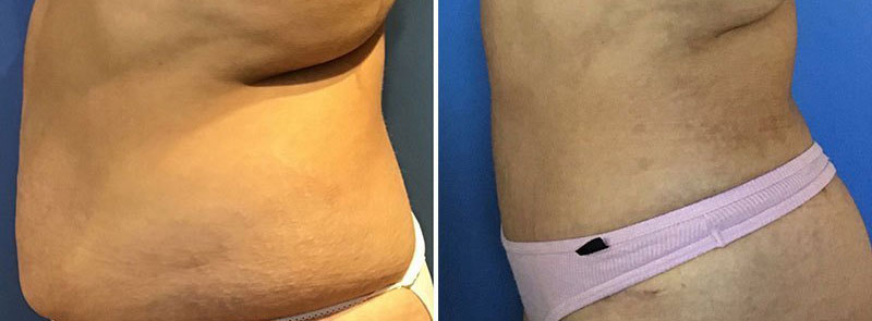 Tummy Tuck Patient Before After Photos