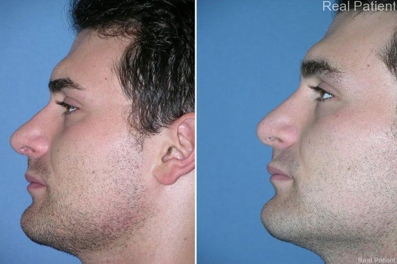 Male Rhinoplasty Patient