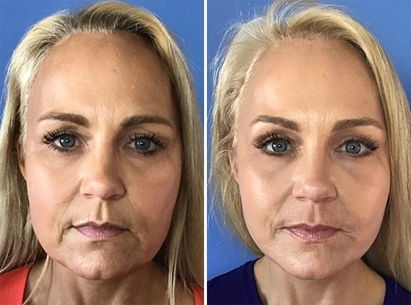 Facelift Patient Photos