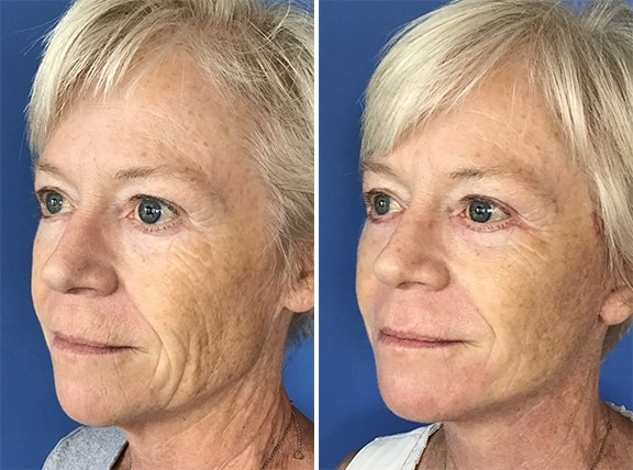 Facelift Patient Results