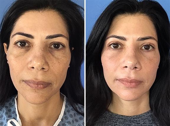 Eyelid Surgery Patient Photos
