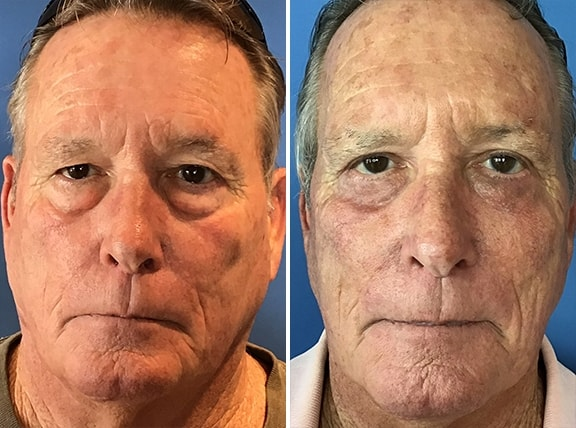 Male Blepharoplasty Patient Photos
