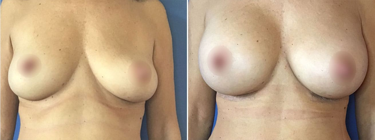 Breast Implant Before and After Photos