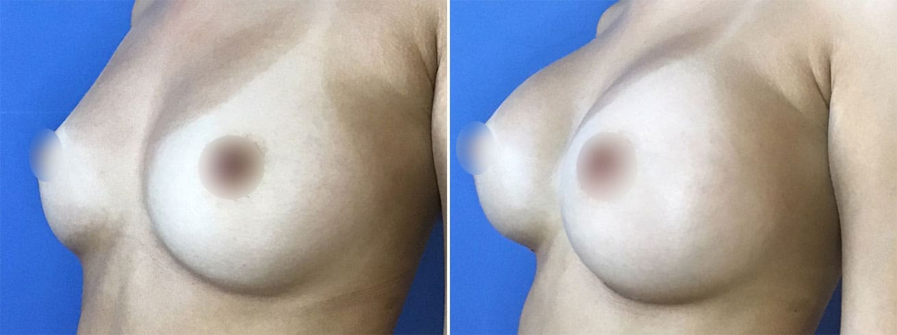 Breast Implant Surgery Patient Photos