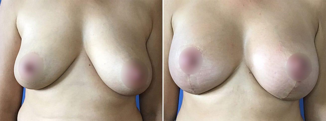 Breast Augmentation Patient Photos