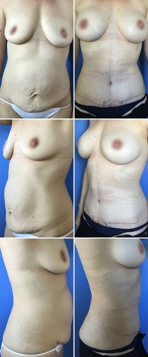 Mommy Makeover Before and After Patient Photos