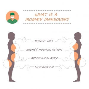 Mommy Makeover Areas of focus Infographic