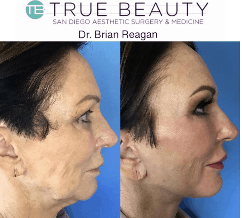 Facelift Before and After Photos of San Diego patients