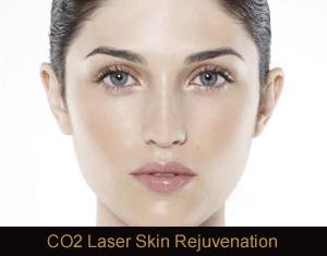 CO2 Laser Resurfacing Treatment in Novi, MI